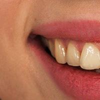 Les différentes techniques pour avoir les dents plus blanches